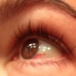 eyeheal